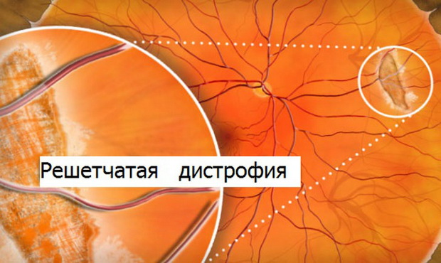 Дегенерация сетчатки глаза уход как вылечить