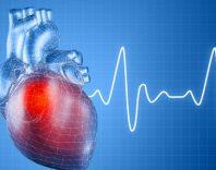 Мерцательная аритмия сердца: причины, симптомы и лечение