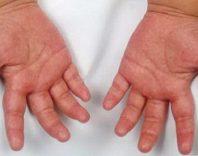 Васкулиты у детей и взрослых: причины, симптомы и лечение