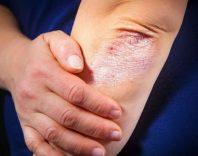 Заболевание кожи псориаз у детей и взрослых