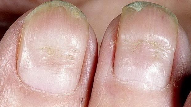 Болезни ногтей на руках и ногах
