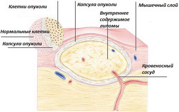 Доброкачественная опухоль из жировой ткани