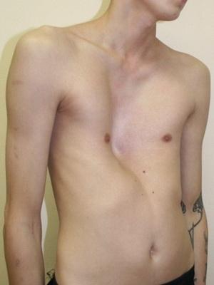 Незначительная деформация грудной клетки