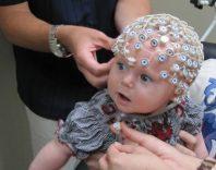 Эпилепсия у детей: основные виды, причины и лечение