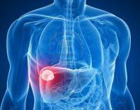 Доброкачественные и злокачественные опухоли брюшной полости, передней стенки и забрюшинного пространства