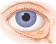 Ячмень на глазу: причины, медикаментозное и народное лечение