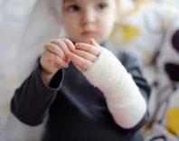 Основные виды травм у детей: характеристика и лечение