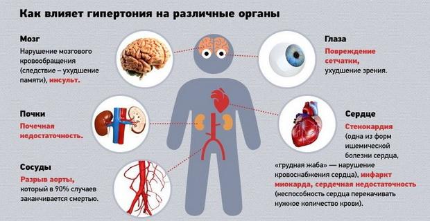 Риски ссо при гипертонической болезни - МедВопрос
