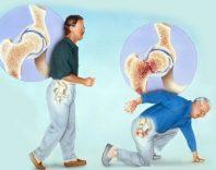Остеопороз: симптомы и медикаментозное лечение